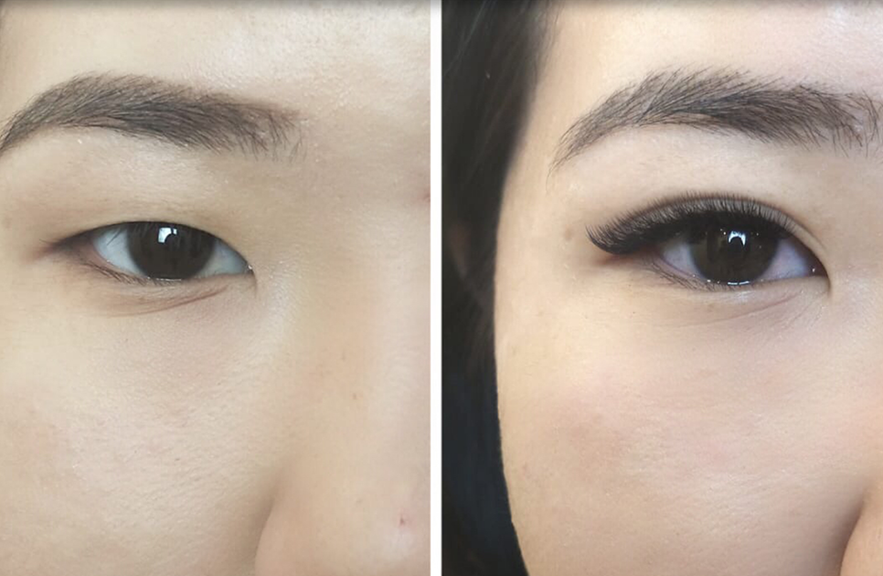 Eyelid Lifting